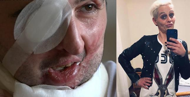 Sara Del Mastro condannata a 7 anni e 10 mesi: aggredì con l'acido il suo ex Giuseppe Morgante